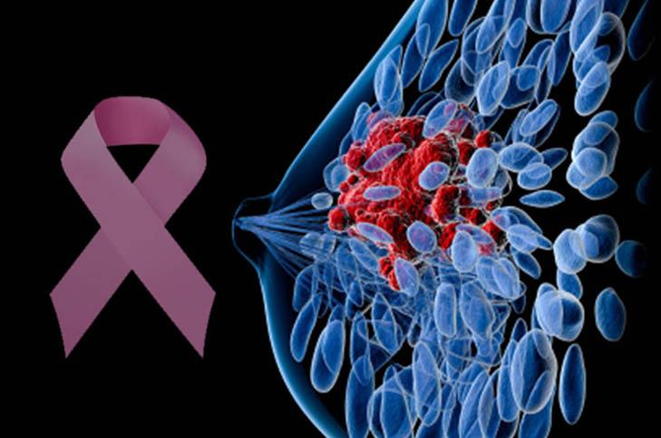 cáncer de próstata latitudes